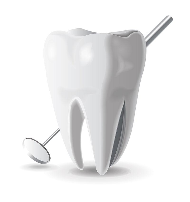 dental post